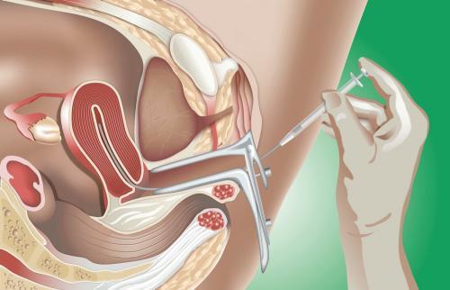 klinika-po-ochistke-spermi